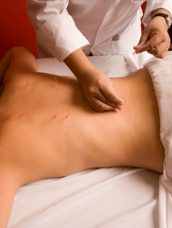 acupuncture in the military