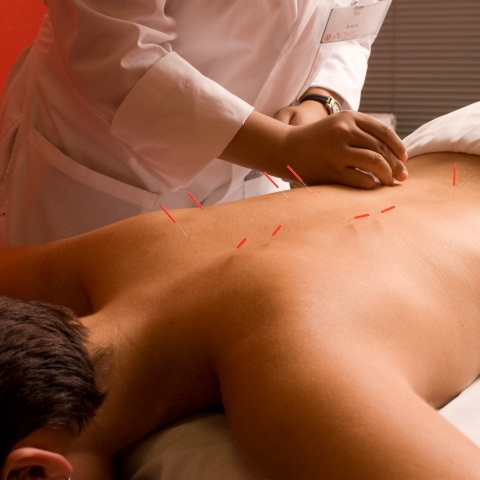 professional acupuncture opportunities