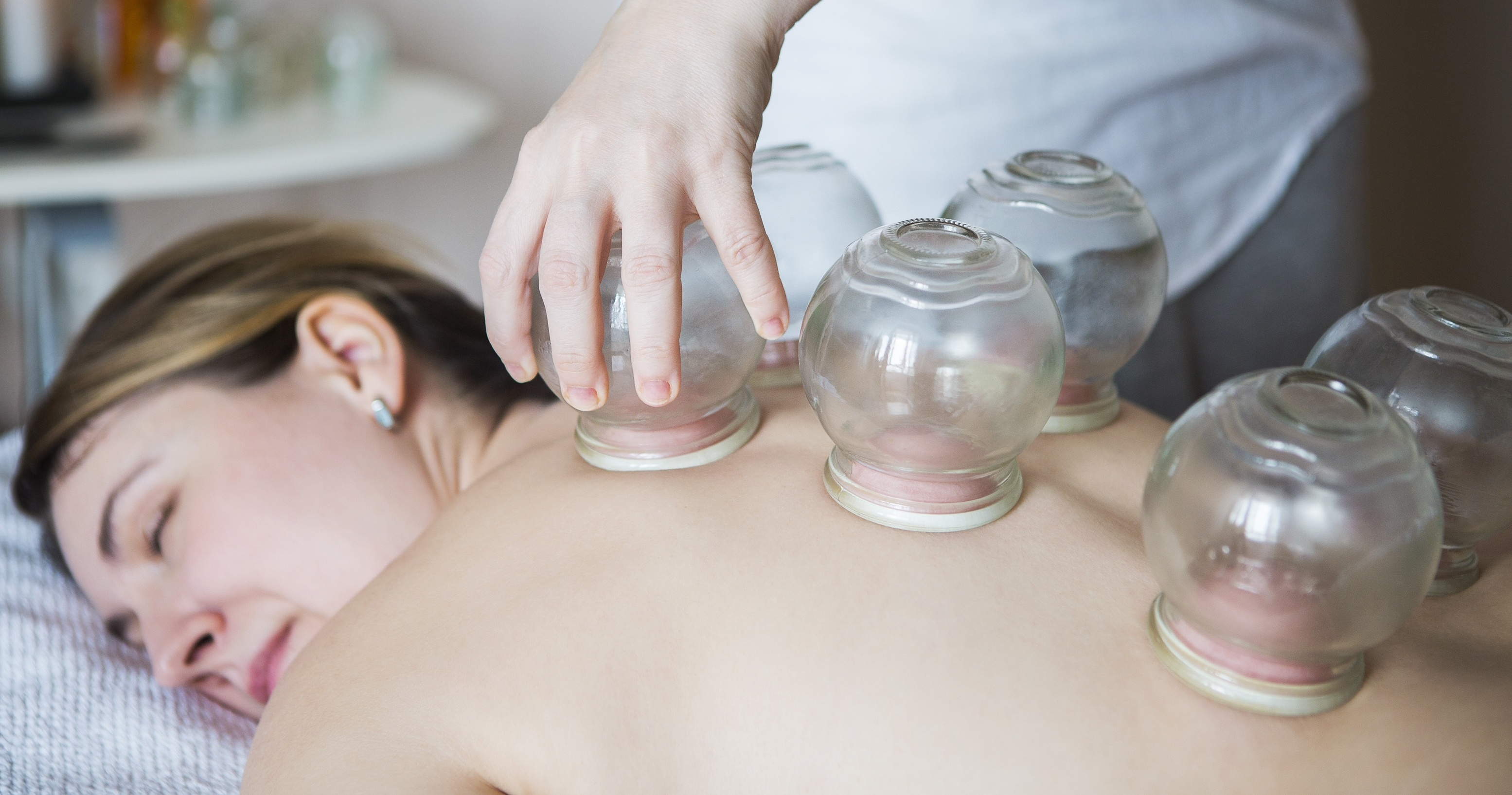cupping therapy Austin