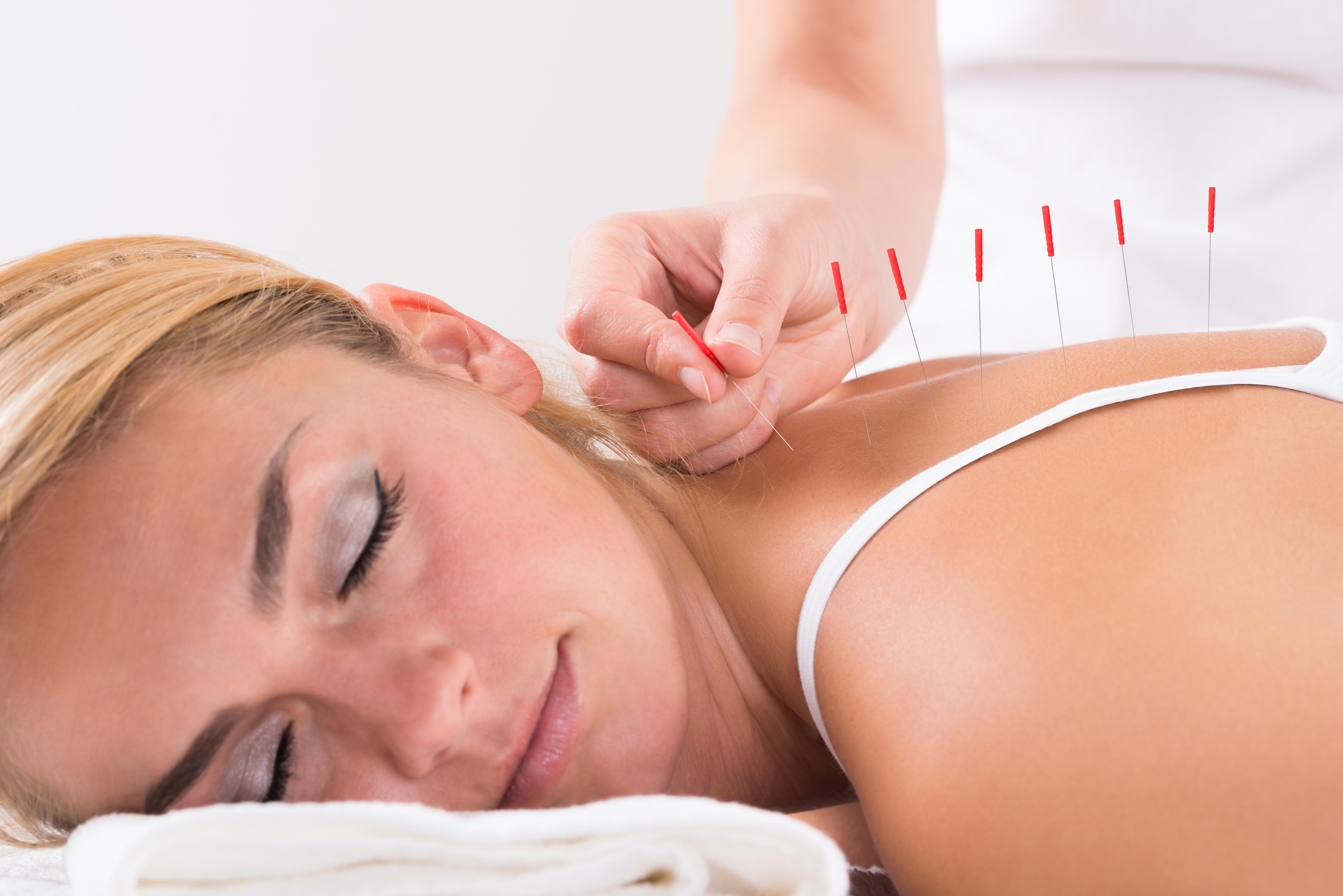 AOMA acupuncture treatments