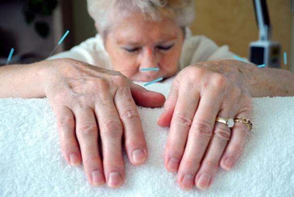 AOMA Acupuncture Arthritis Treatment