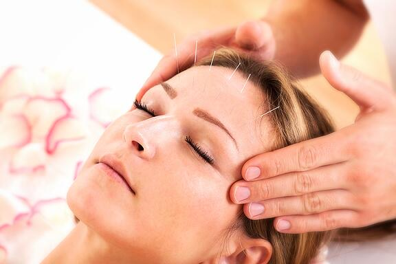femaleacupuncture-017650-edited