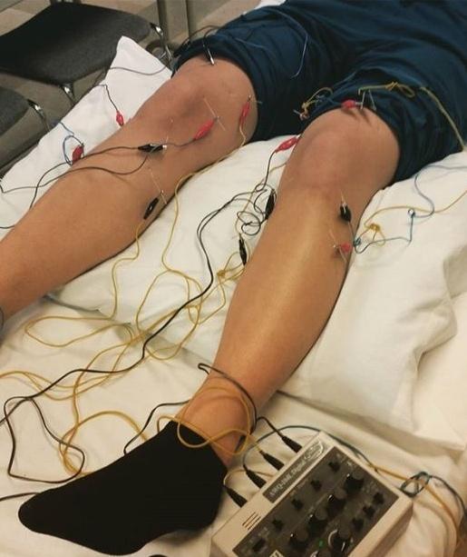 eStim acupuncture austin