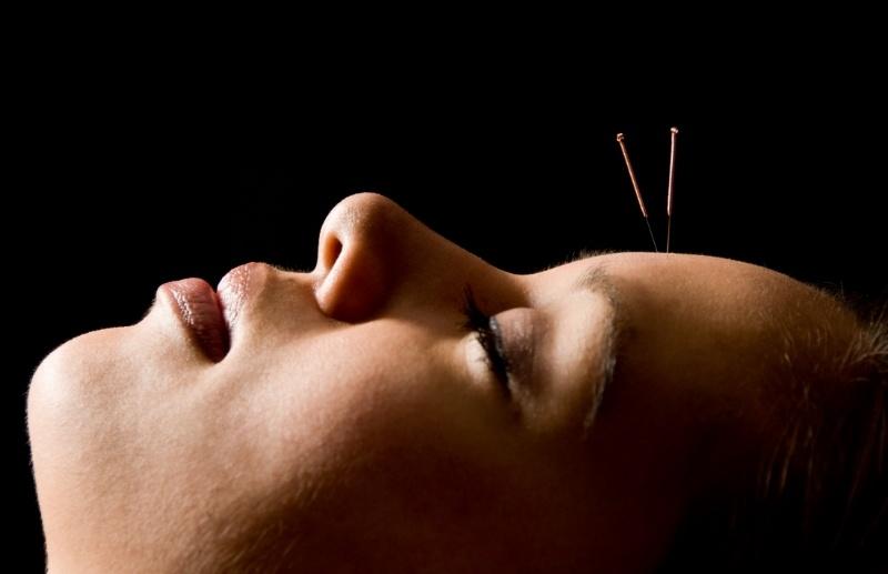 AcupuncturePatient-725805-edited