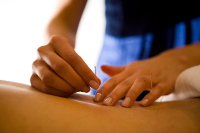 Chinese Medicine 101: 5 Reasons to go to Acupuncture School